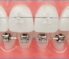 Broches orthodonties